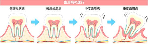 漢方 妊活 不妊治療 歯周病