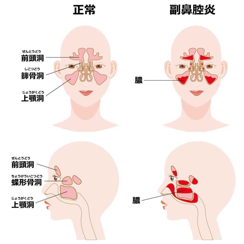 副鼻腔炎、蓄膿症(相模原タナココ漢方薬局・鍼灸接骨院)