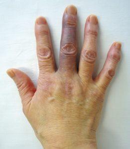 Achenbach(アッヘンバッハ)症候群(相模原タナココ漢方薬局鍼灸接骨院)